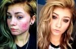 6 trucos para maquillar la piel grasa con acné